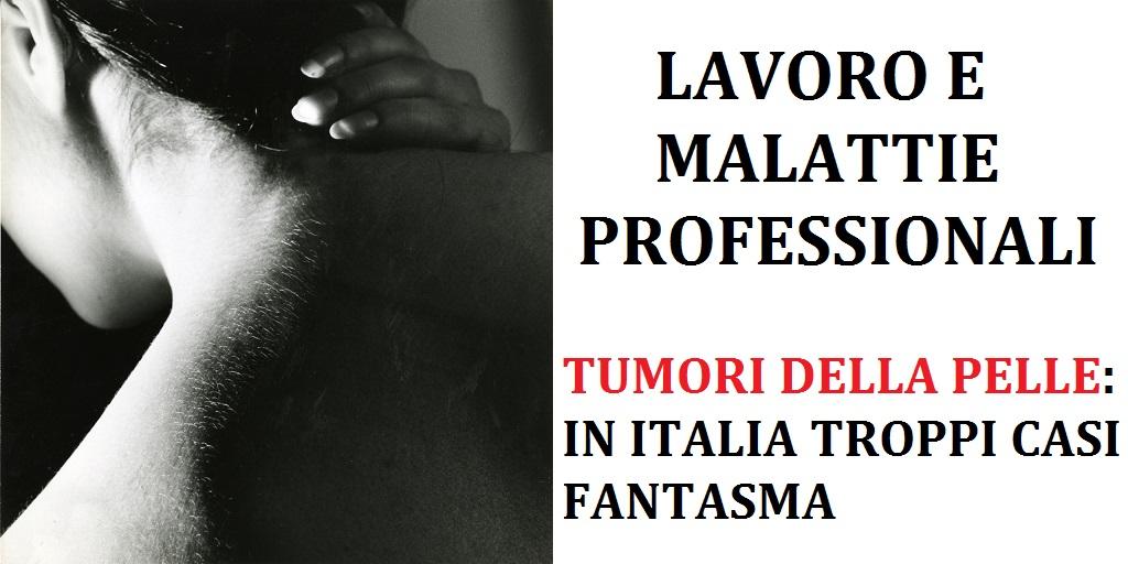 malattie professionali - tumori della pelle